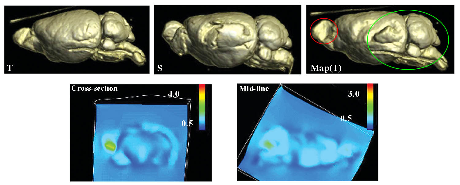 Warping of 3D MRI of normal mouse             brains